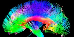 Our brains on music
